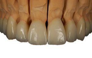 ejemplo-protesis