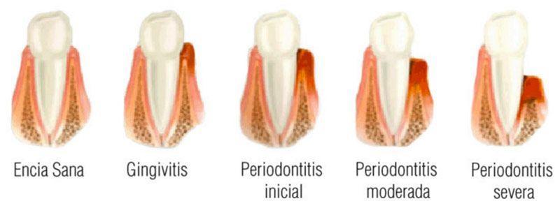 enfermedades-periodoncia
