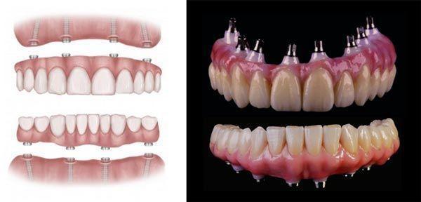 montaje-implante