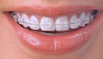 ortodoncia-brackets-zafiro