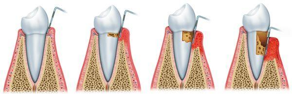 periodontitis-cs