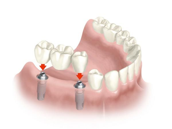 protesis-parcial