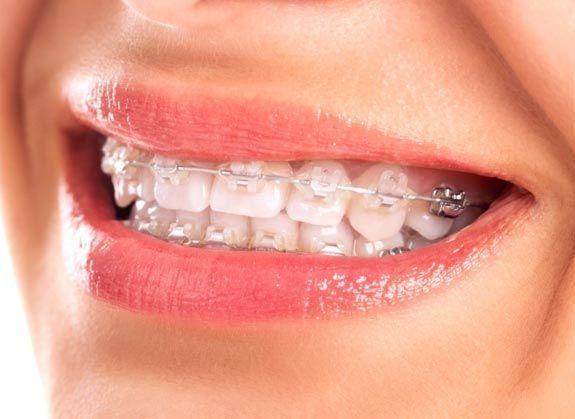 tratamiento-correctivo-ortodoncia
