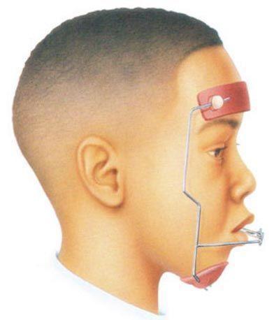 tratamiento-interceptivo-ortodoncia