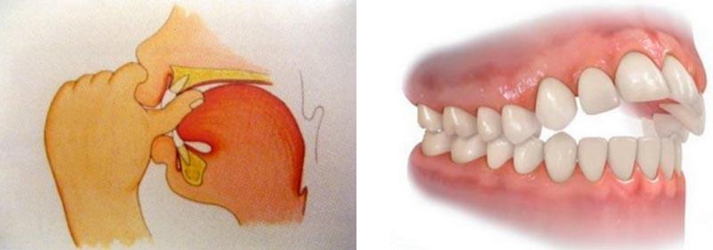 tratamiento-preventivo-ortodoncia