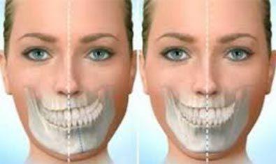 asimetrias-faciales