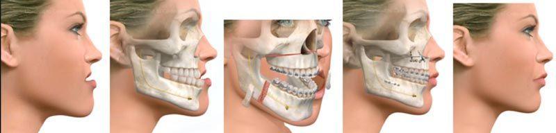 cirugia-ortognatica-ejemplos