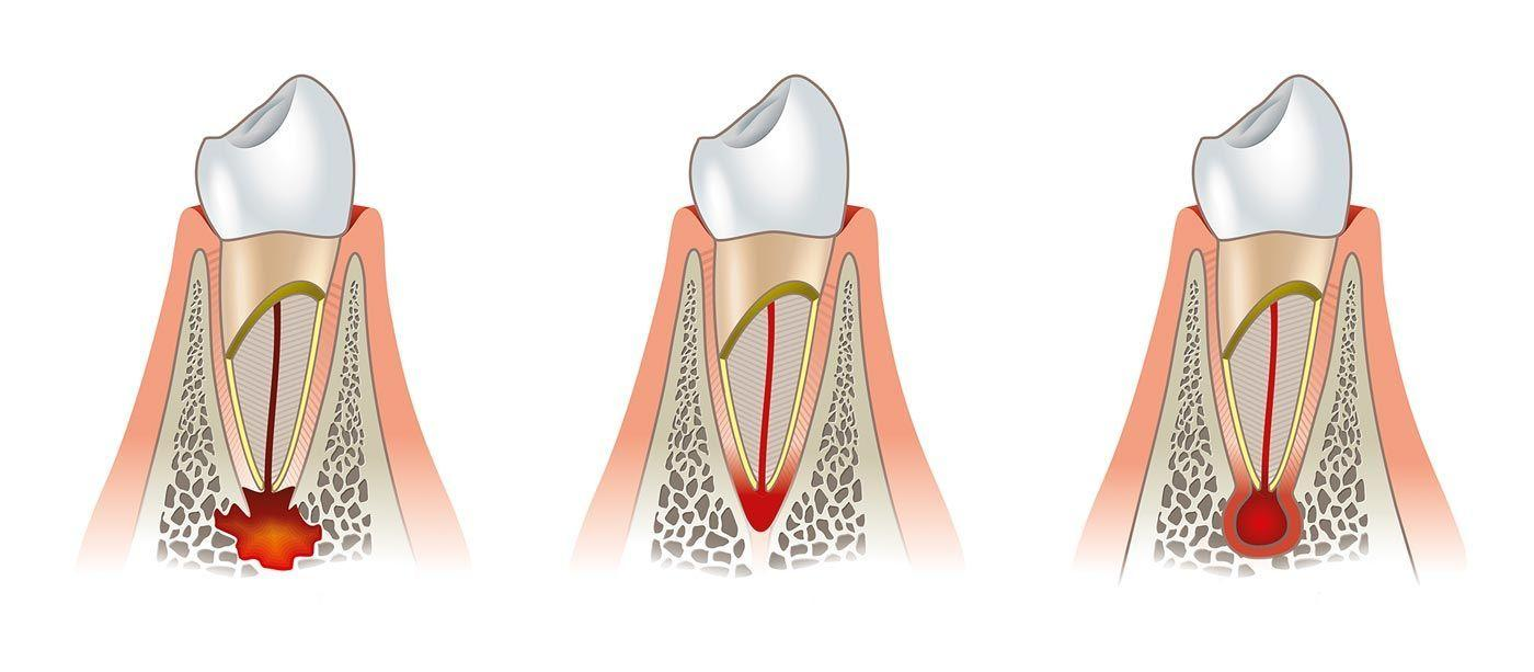 cirugia-periapical-header