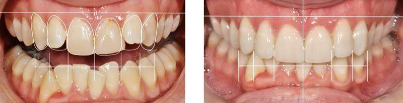 dientes-mal-alineados