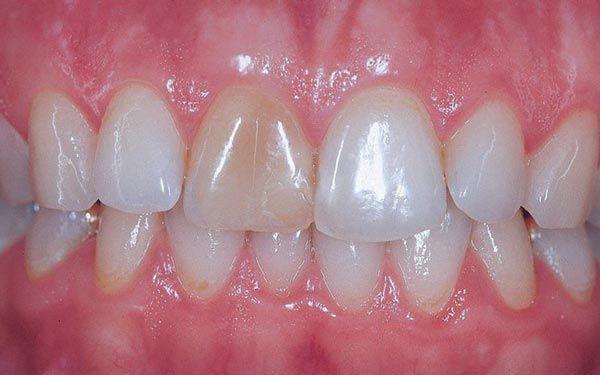 endodoncia-dientes