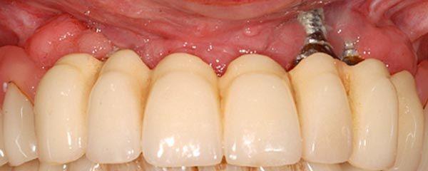 implante-completo-estetico