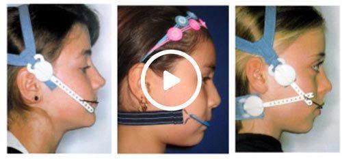 ninas-ortopedia-dentofacial