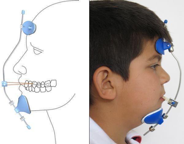 nino-ortopedia-dentofacial