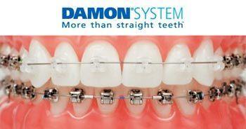 ortodoncia-incognito