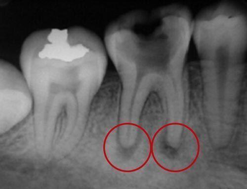 problemas-endodoncias