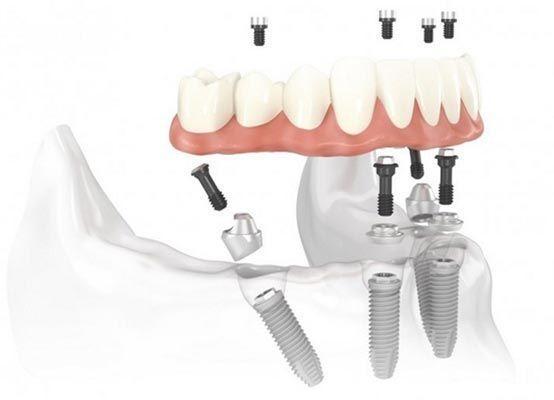 esquema implante dentadura