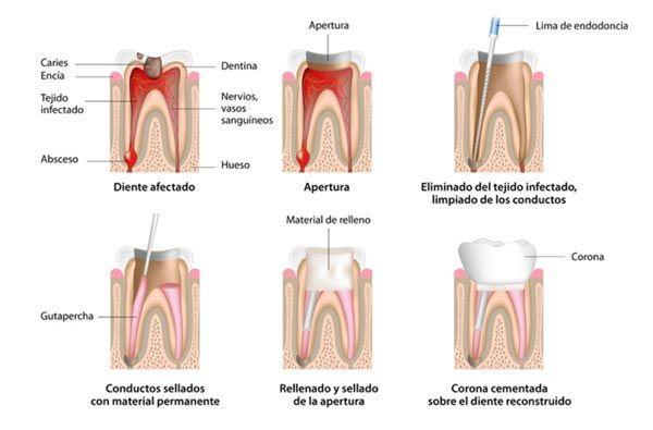 tipos-de-endodoncias