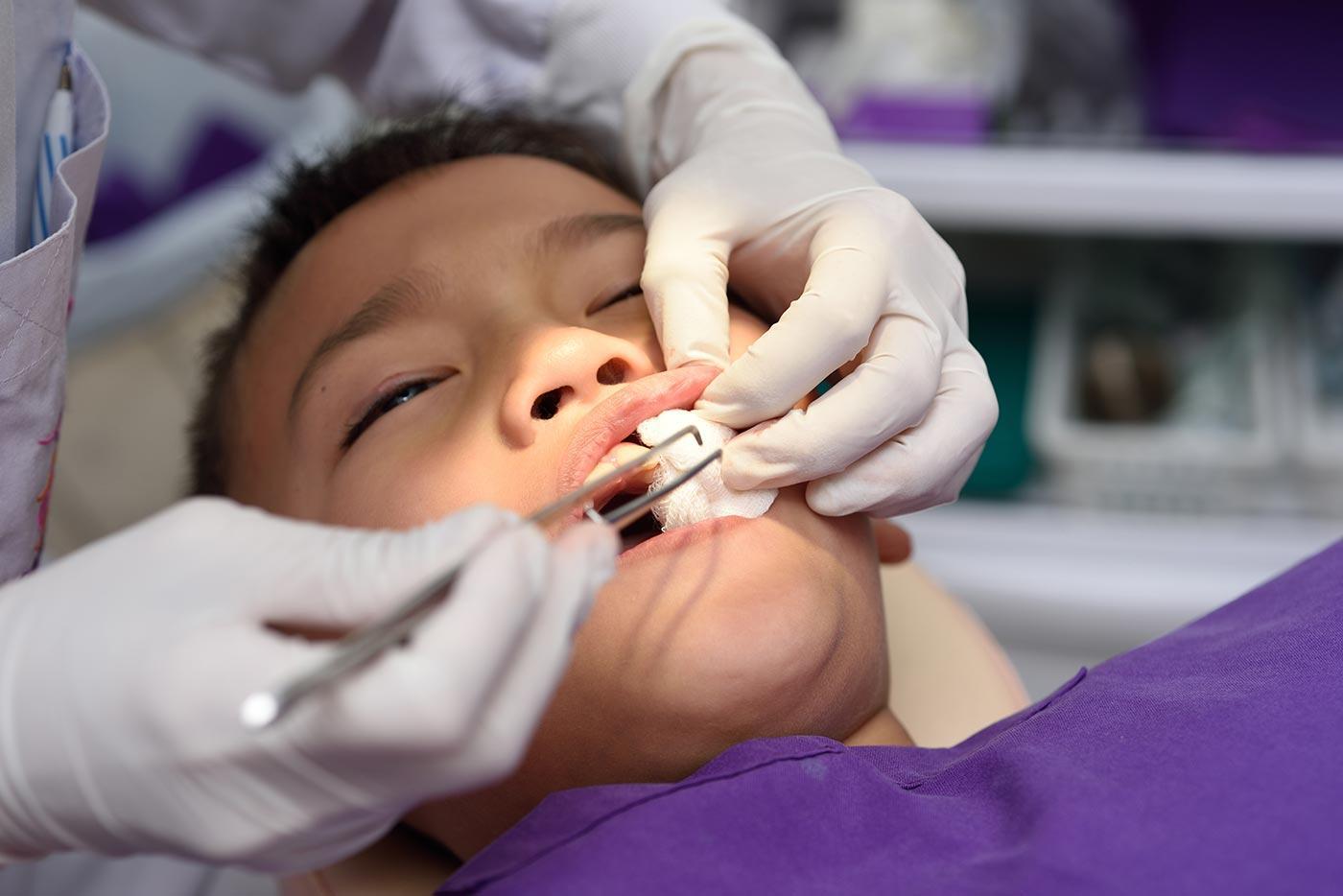 traumatismo-dental-header