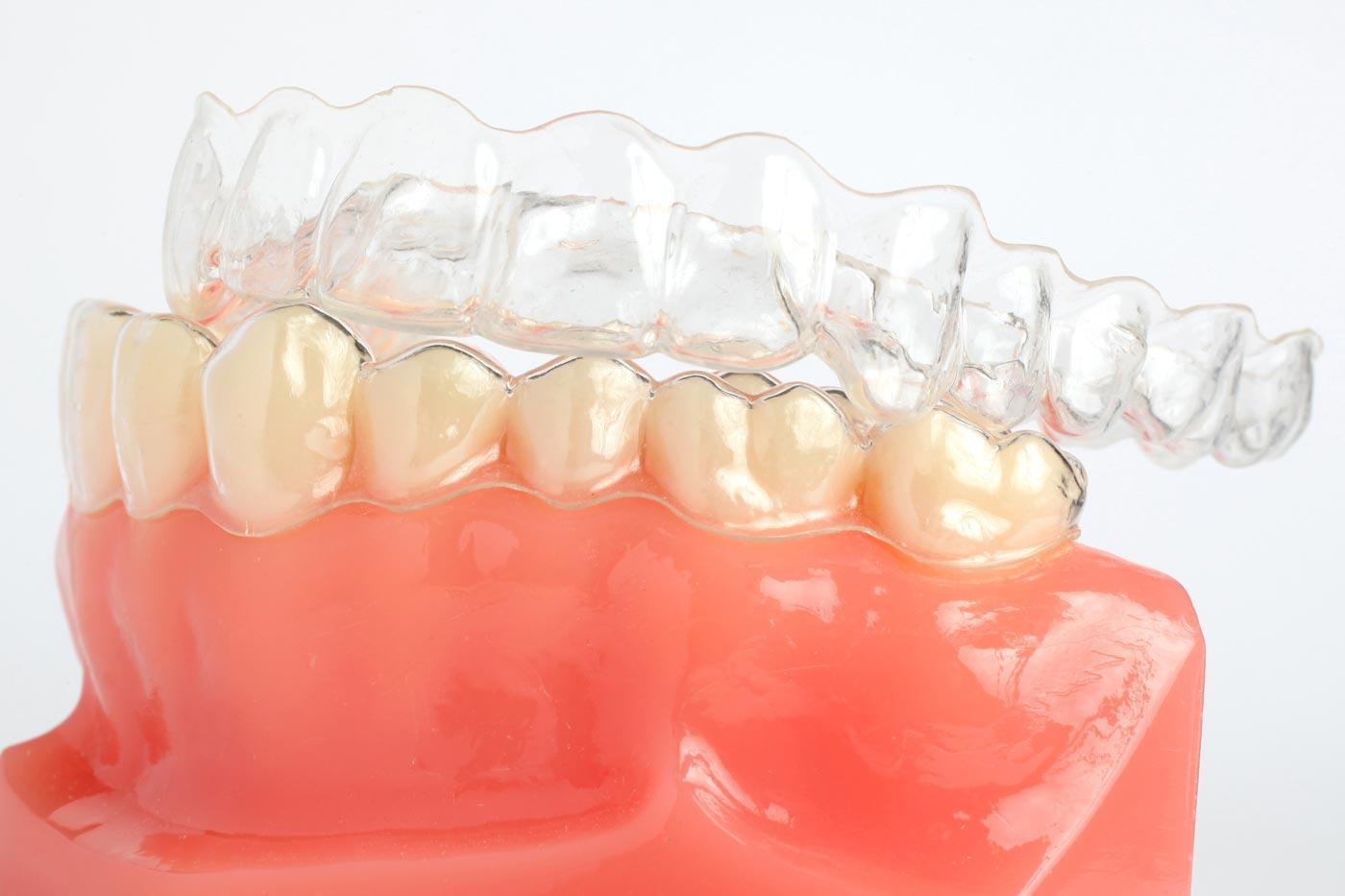 ortodoncia-header-1