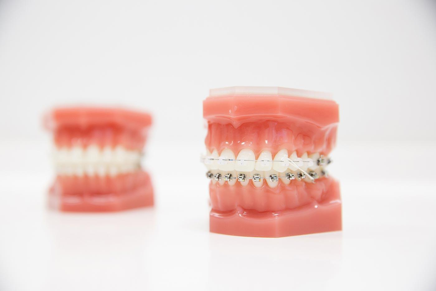 ortodoncia-header-3