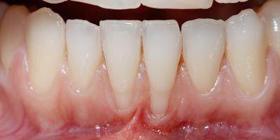 Before-Raices dentales