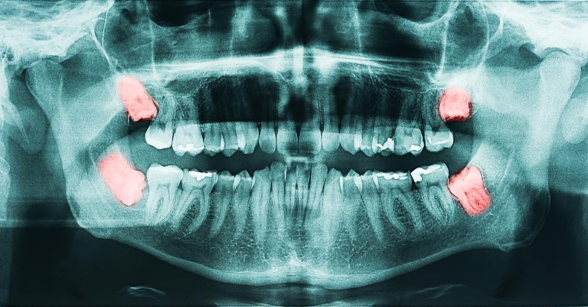 Radiografía muela del juicio