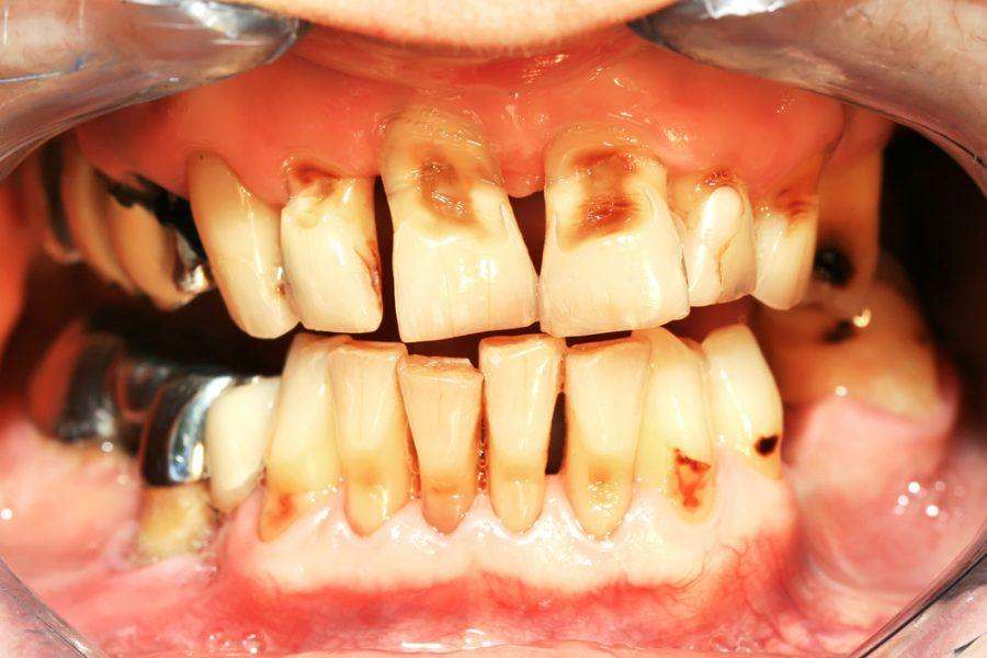 Abrasión dental