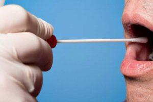 Prueba diagnóstico de la sialorrea