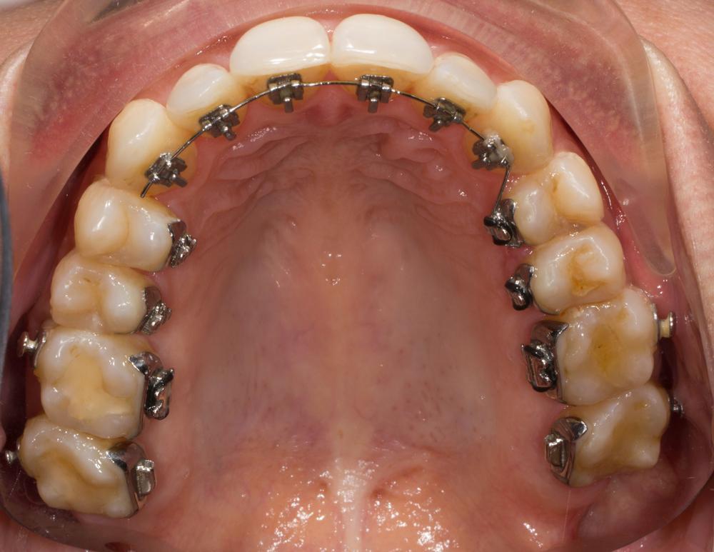 Interior dentadura con ortodoncia lingual