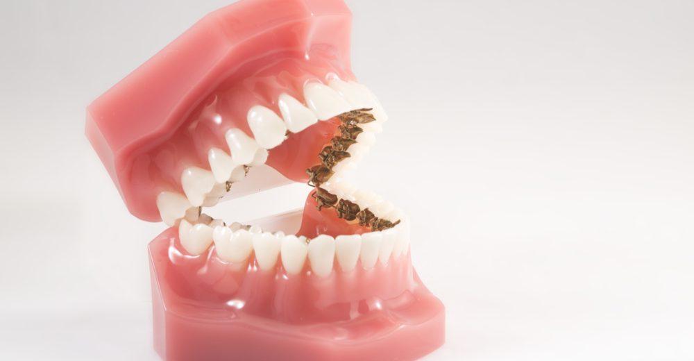 prótesis dentales flexibles