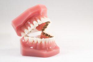 Dentadura con ortodoncia lingual