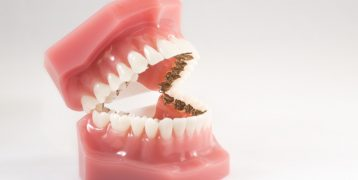 ¿Cuáles son las ventajas e inconvenientes de la ortodoncia lingual?