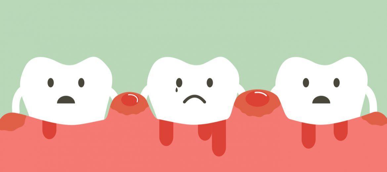 Ilustración gingivitis