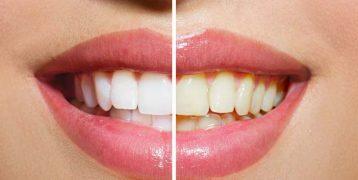 4 tipos de blanqueamiento dental. Cúal me conviene