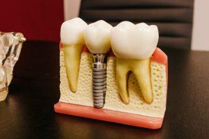 durabilidad de los implantes dentales