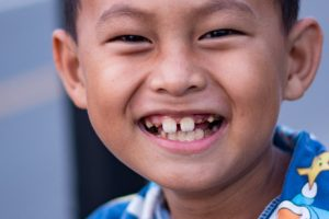 falta de dientes